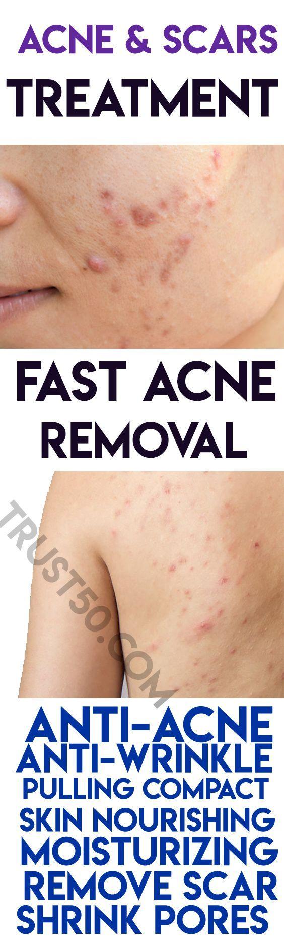 Royal cream acne & scars treatment