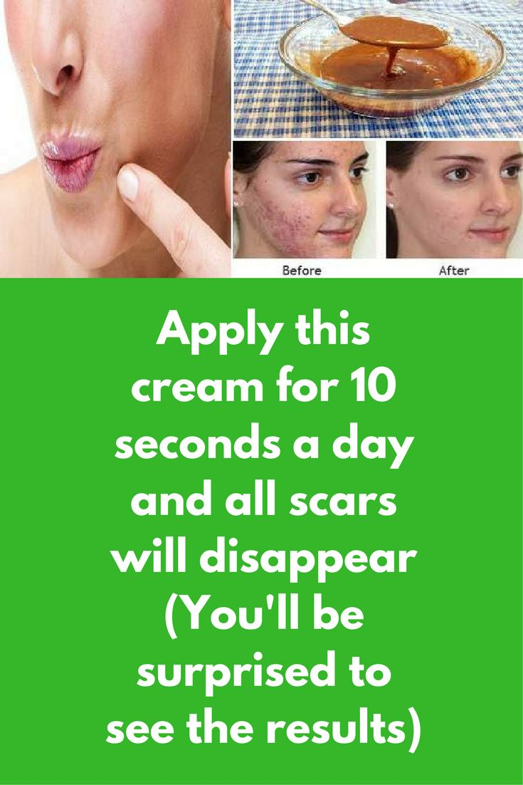 Apply this cream for 10 seconds a day and all scars will disappear (You'll be surprised to see the results) Today I am going to share one remedy with all our users that can remove any kind of scars from your skin, but only one condition is there that you have to use it on regular basis and make sure ingredients are pure For this you will need 2 ingredients Raw honey Cinnamon powder Steps …