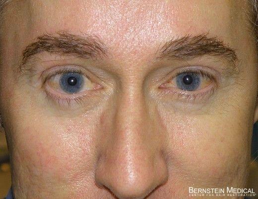 Eyebrow Transplant and Restoration - eyebrow anatomy, eyebrow transplant technique, cosmetic results of an eyebrow transplant