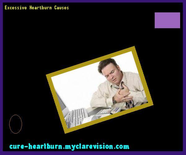 Excessive Heartburn Causes 142212 - Cure Heartburn