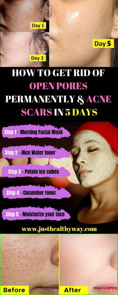 How to get rid of open pores permanently & Acne Scars in 5 days