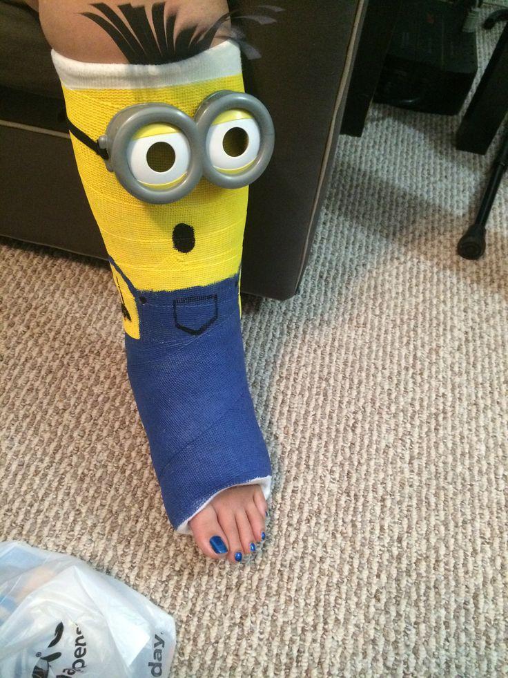 Minion leg cast design