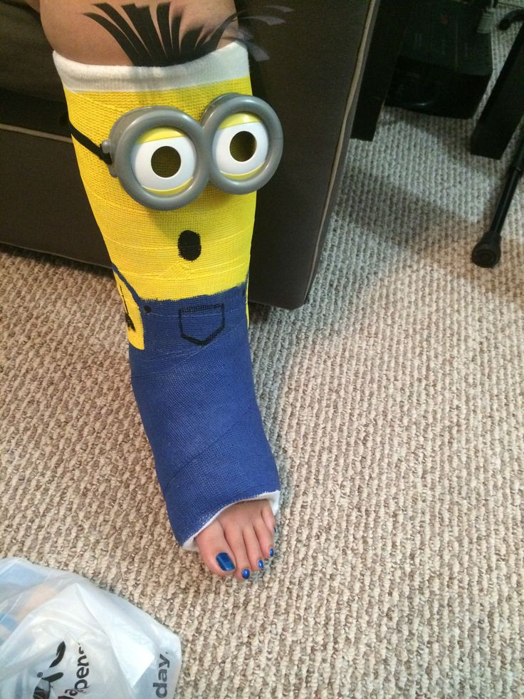 Minion leg cast design