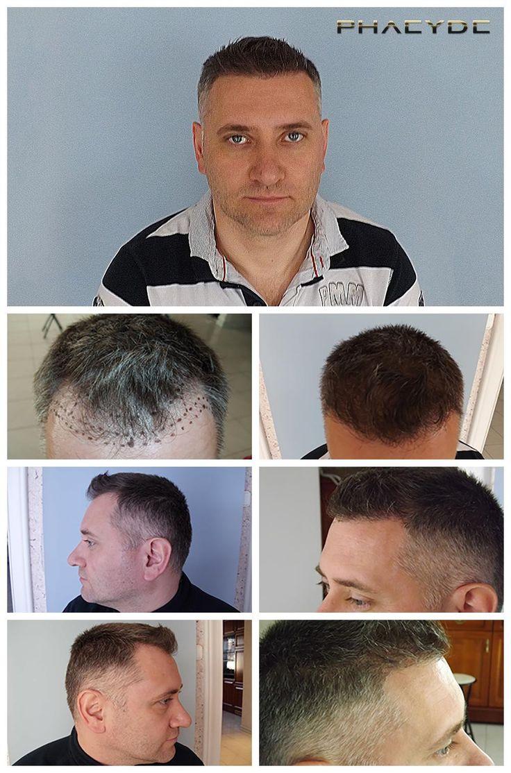Пересадка волосся 6000 волосся- PHAEYDE Переклад  Балаш був лисіючий в його храм зон: 1,2. Область не був досить великий, однак хірургічні команді довелося імплантату Екстрім щільна для того, щоб досягти найбільш природний вигляд це можливо. Проведено PHAEYDE клініки.  http://ua.phaeyde.com/peresadka-volosja
