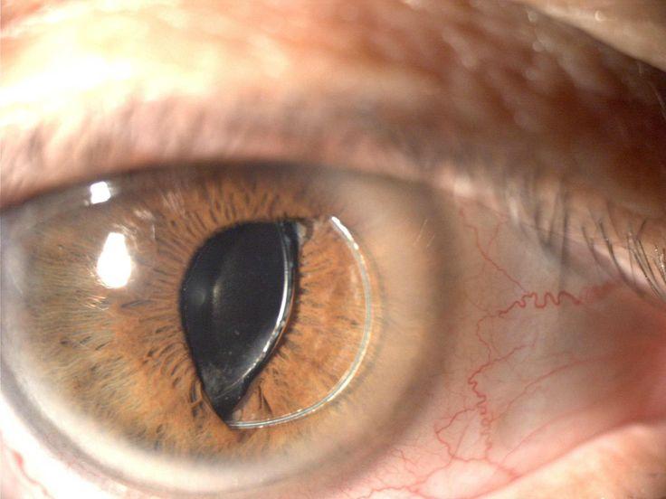 Subluxación de Lente Intraocular hacia cámara anterior