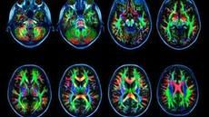 Too Much Screen Time Damages the Brain ~ February 2014 article Psychology Today