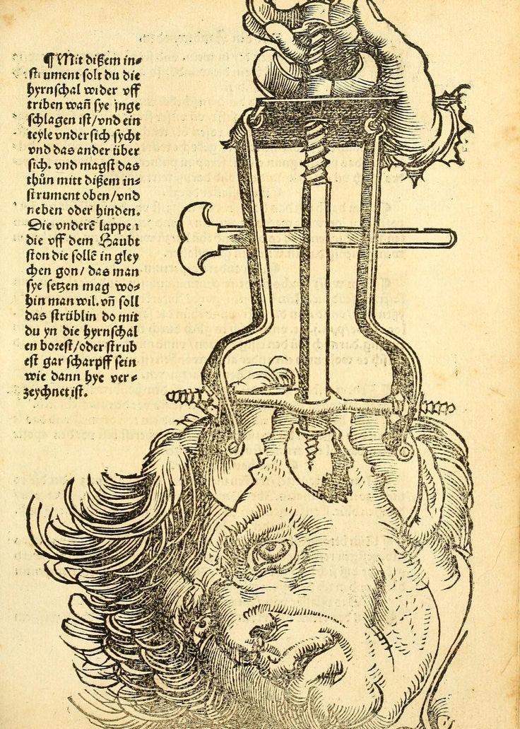 Artist: Hans Wechtlin, Title: Feldbuch der Wundartzney, Page: 73, Date: 1528