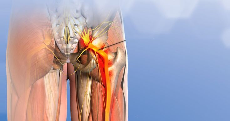Deciding for or against surgery to treat severe sciatica pain is not an easy. A study published in the New England Journal of Medicine sheds some light on this important decision.