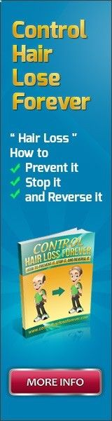 Prevent hair loss tips, balding solution, women hair loss treatment and stop hair loss. A guide to recognizing and treating hair loss the natural way...