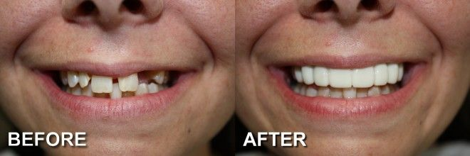 What a difference a partial denture can make!   http://www.amberwiebedds.com/dental-services/restorative-dentistry/specialty-dentures/