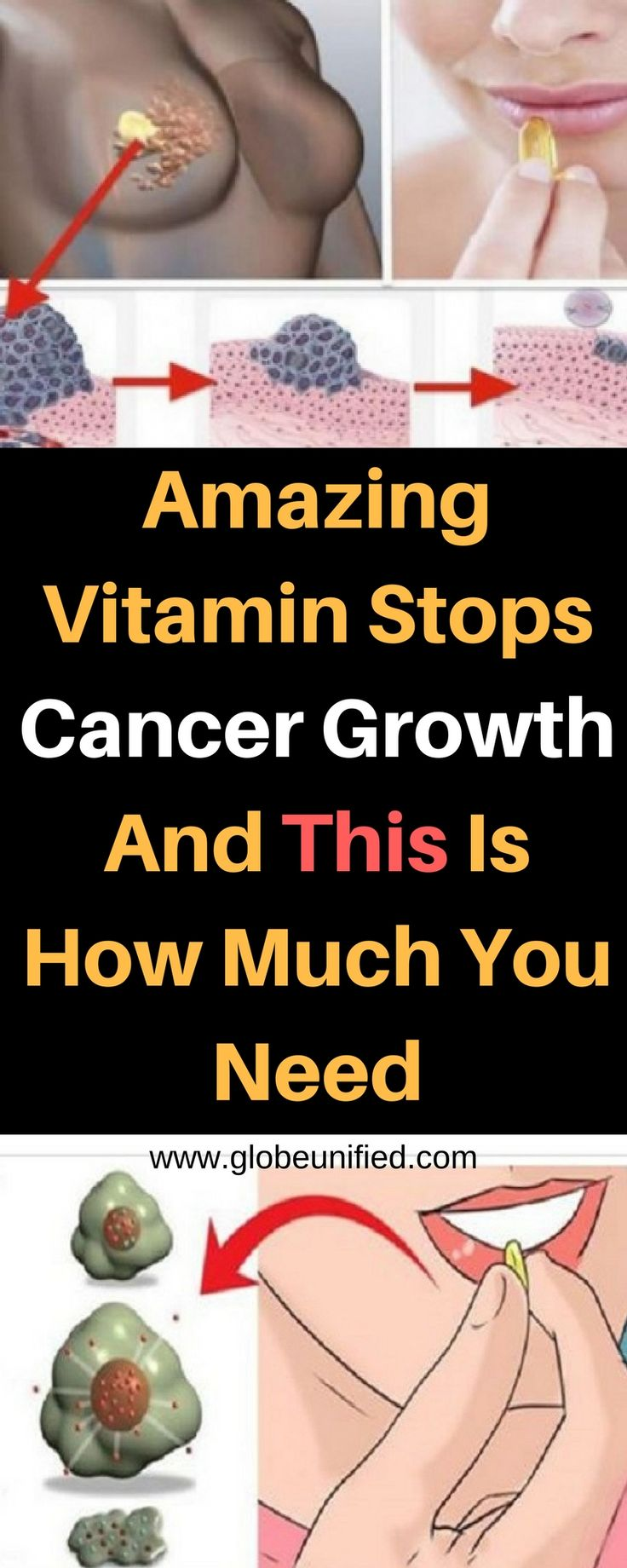 This vitamin protects us from colorectal, breast, and prostate cancer. #cancer #stopcancer #vitamin #vitamins #cancer #breastcancer #coloncancer #prostatecancer #rectalcancer