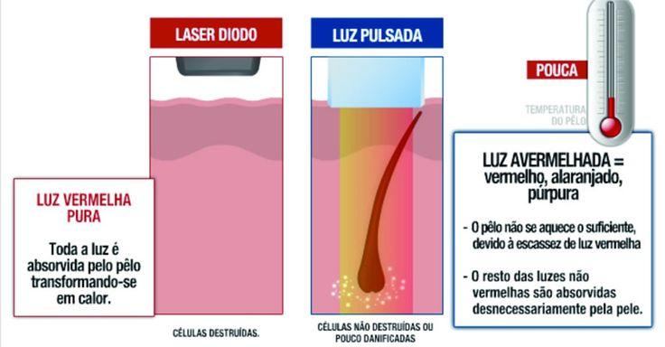 Clínica Unique - Você sabia que existe uma grande diferença entre depilação a laser e fotodepilação com luz pulsada?