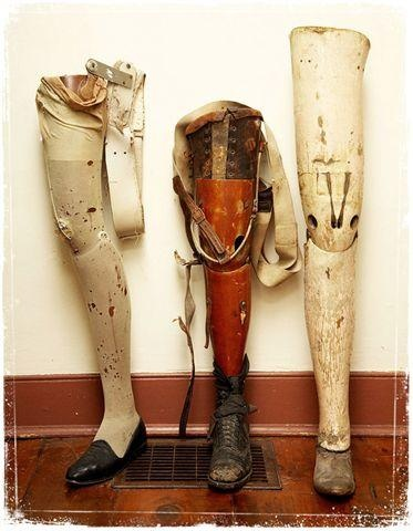 43 Best Images About Pieces Of Prosthetic History On Pinterest