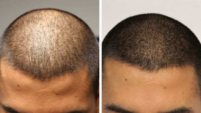 awesome Haar-Tattoo – Scalp Micropigmentation