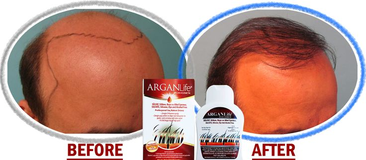 #oil #hairgrowth #hairgrowthshampoo #hairtypes #shampoo #hairshampoo #organichairmask #organicshampoo #hairregrowthproduct #hairfall #dıyhair #dıyremedy #onionmask #photo #arganlife #menhair #man #stophairloss #stophairfall #prevent #hairsolutions #vitamins #healthy #food #artcraft #craft #alopeciaareata #arganlife