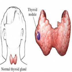 Six Effective Natural Cures For Thyroid Nodules