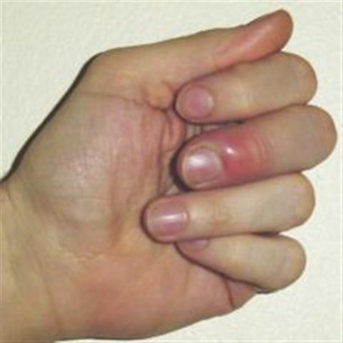 Finger Whitlow How to heal