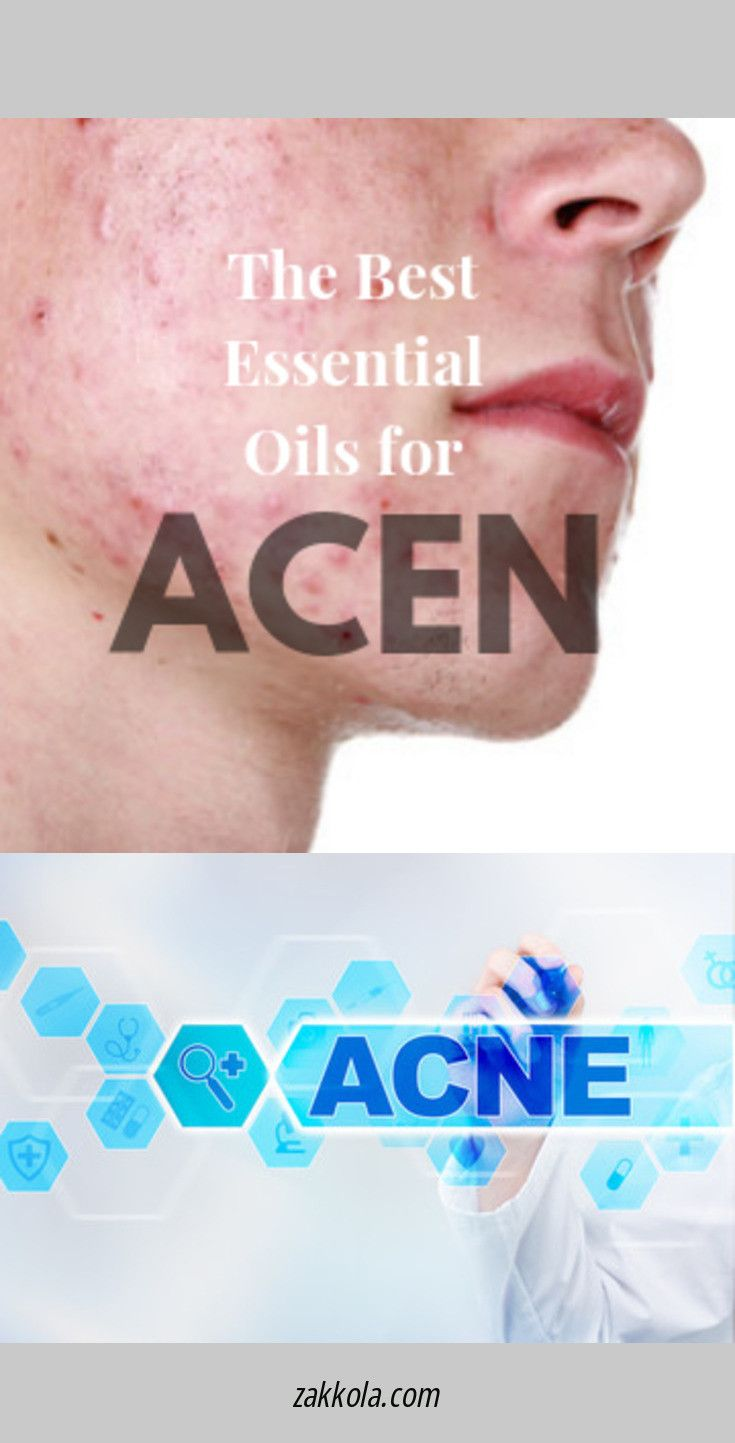 Read about acne. Follow the link to learn more.