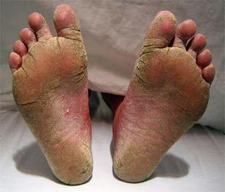 "The Sock Granny ""Everyone deserves warm feet."": Sock Drives Across Canada for 2015 #givesocks #sockgranny #homeless"