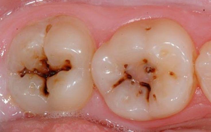 Masz problem z próchnicą, ale za nic nie wybierzesz się do dentysty? Nie neguję Cię i dobrze rozumiem. Jest wiele osób, które będą wzbraniać się wizyty u dentysty do ostateczności. Dlatego jeśli mamy problem z
