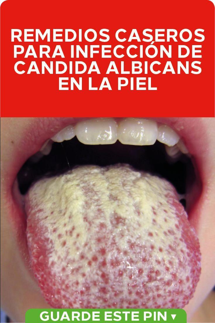 imágenes de infección de la piel por candidiasis