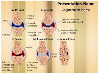 40 best medical powerpoint ppt templates microsoft images on make a great looking ppt presentation quickly and affordably with our professional synovial rheumatoid arthritis stages powerpoint template toneelgroepblik Image collections