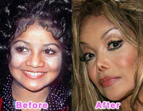 Latoya Jackson. There was nothing wrong with her natural nose.