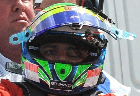 Debris @ 180 mph: Felippe Massa injured after debris hit his helmet in the Hungaroring '09