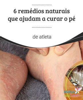 """Pé de #atleta: 6 remédios naturais que ajudam a curá-lo  Os fungos nos #pés, que são conhecidos como """"pé de atleta"""", constituem uma #infecção comum, originada por uma má #higiene ou uma secagem insuficiente."""