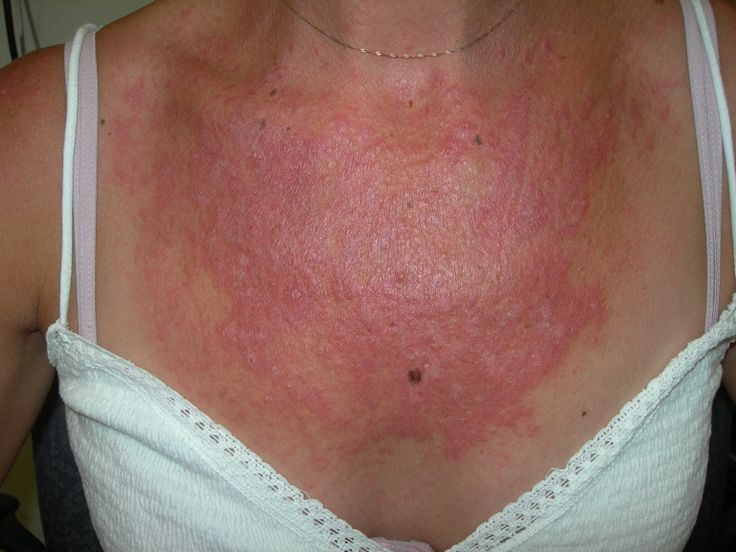 an overview of lupus Cutaneous lupus erythematosus lupus is an autoimmune disease, which affects multiple organs and systems in the body an individual's own immune system attacks various cells causing a wide variety of signs and symptoms.
