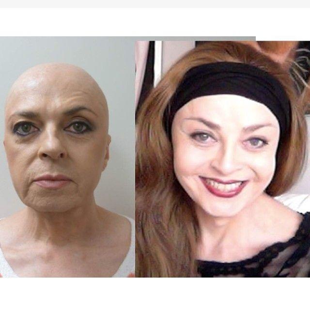 Another #beautiful patient #transformation to start off your week! #happymonday #mtf #facialplasticsurgery #drjeffreyspiegel #advancedfacialaesthetics #boston #chestnuthill #facialfeminization