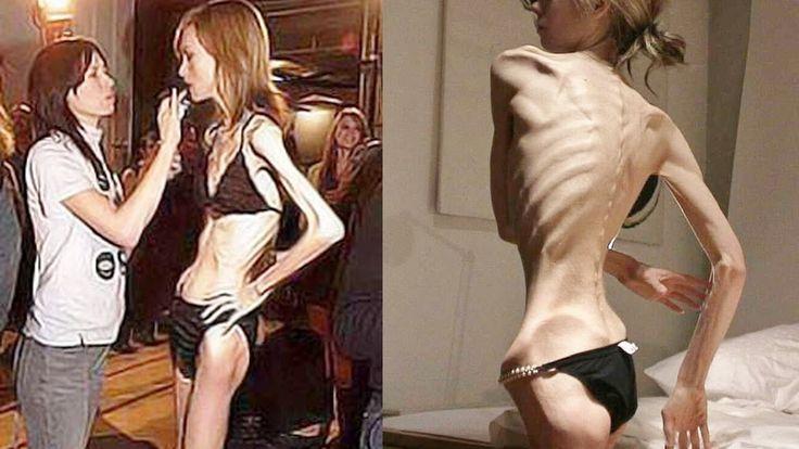 10 Impactantes y Reales Casos De Anorexia y Bulimia (Imágenes Impactantes)