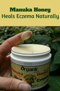 Manuka Honey Benefits Heals Eczema Naturally