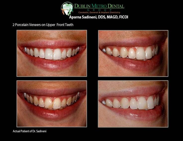 2 Porcelain Veneers On Upper Front Teeth Her Front Two