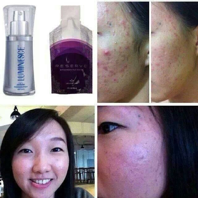 Acne - Serum and Reserve
