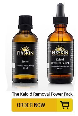 The Keloid Removal Power Pack | The Keloid Treatment That Works!