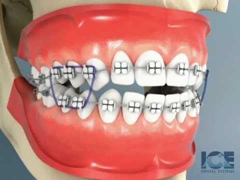Niềng răng khớp cắn không đều