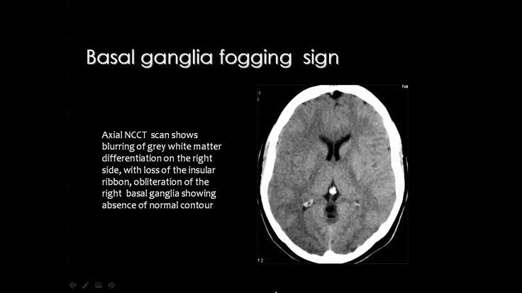 Cerebrovascular imaging   White matter, Basal ganglia ...