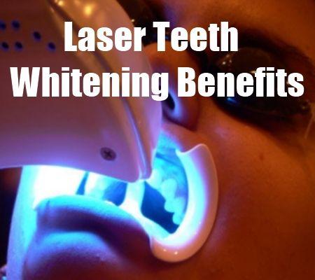Laser Teeth Whitening Benefits