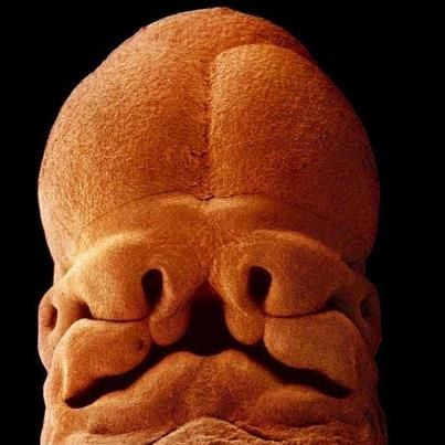 human embryo face at about 5 weeks. See that center part -- that is the dent under your nose!
