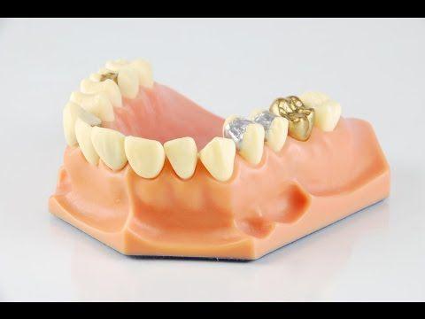 The Top Three Benefits of Dental Crowns www.bondidental.com.au