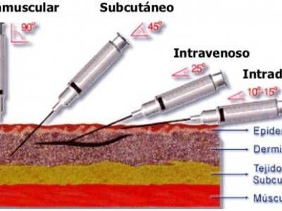 4 tipos de inyecciones que debe conocer el estudiante de medicina