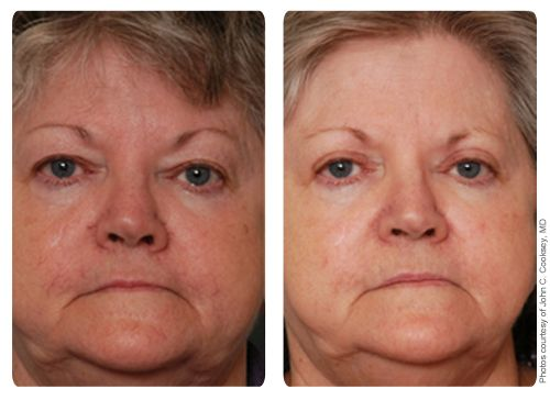 Broad band laser for facial veins