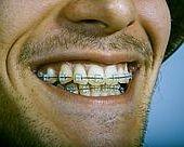 Alerte aux faux appareils dentaires !