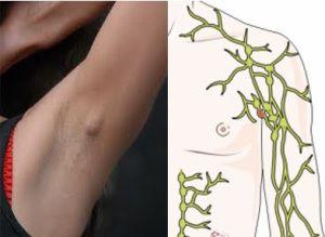 Benjolan di ketiak umumnya terjadi akibat membesarnya (bengkak) kelenjar getah bening yang terletak di ketiak kanan ataupun kiri. Kelenjar getah bening merupakan bagian dari sistem limfatik yang berperan sebagai sistem pertahanan tubuh untuk melawan infeksi, tetapi juga dapat mengalami pertumbuhan abnormal seperti kanker.
