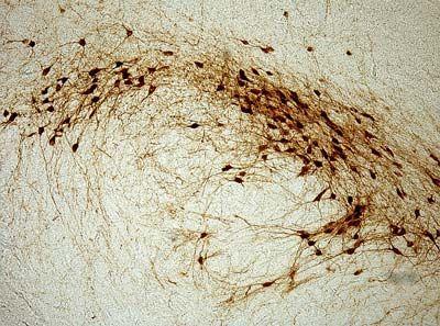 Dopamine neurons in rat substantia nigra revealed by tyrosine hydroxylase immunohistochemistry
