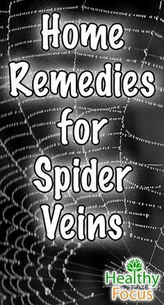 Find out the top Home Remedies for Spider Veins. There are many natural remedy options to deal with spider veins and varicose veins. - Healthy Focus