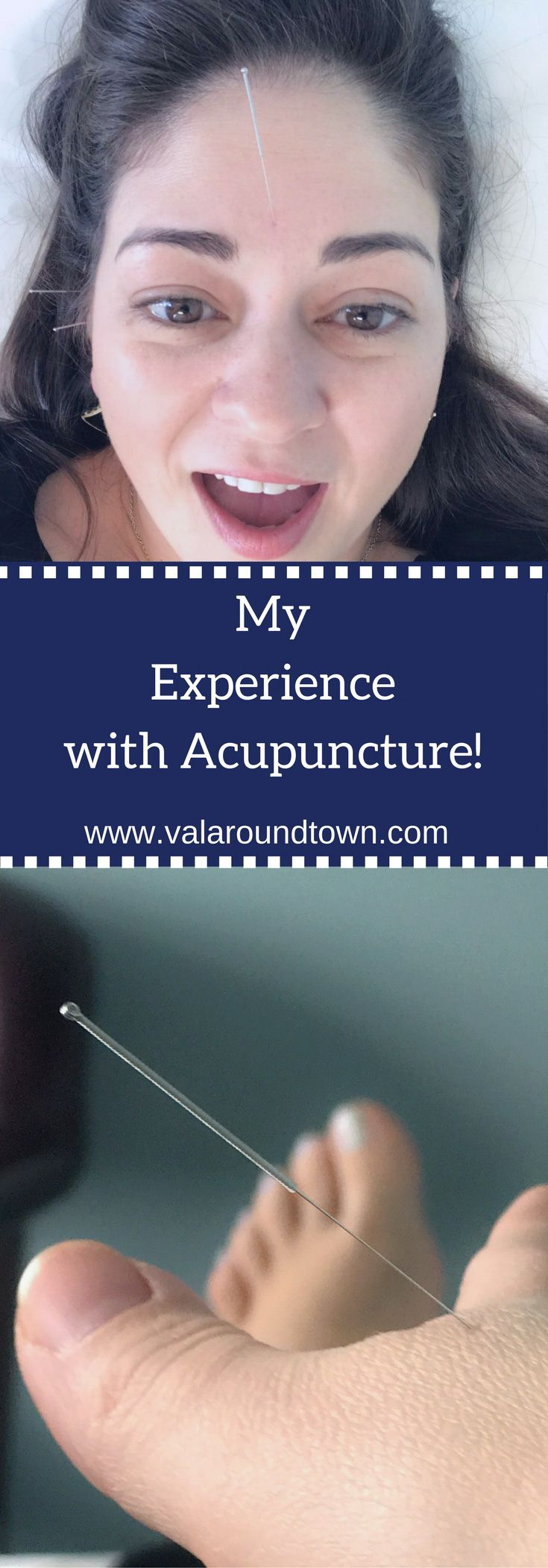 I had my 1st experience with Acupuncture, check out my behind the doors look | Acupuncture | Stress Treatment | Chinese Medicine | Beauty Treatment