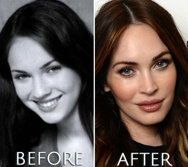 Megan Fox plastic surgery before and after photo