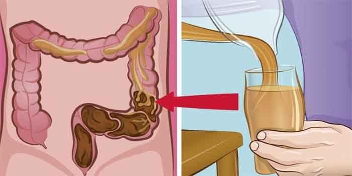 Veel mensen hebben last van darmklachten, het is immers ook zeer vervelend als je hier last van hebt. In sommige gevallen heb je zo'n erge buikkrampen dat je niks kunt ondernemen. Je kunt de kans v…